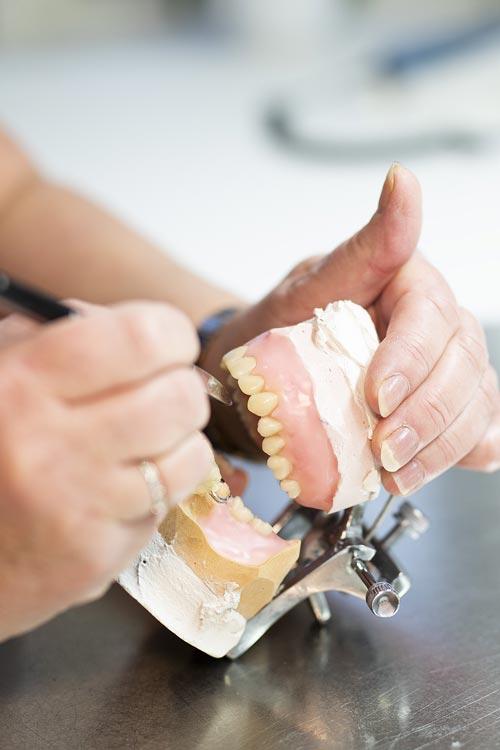 Tandprotetikeren Tandproteser til ømme gummer